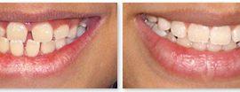 get lingual braces
