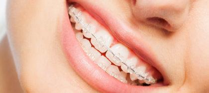 get braces